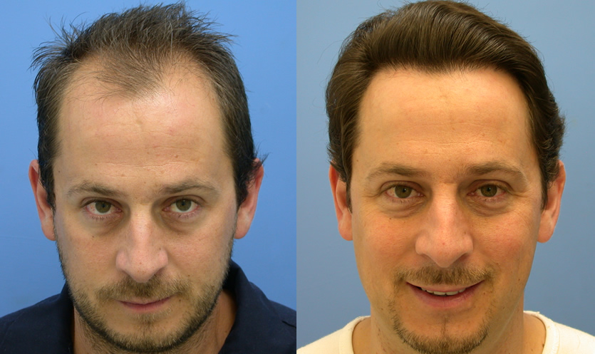 hair replacement plastic surgery