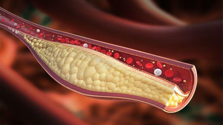 Coronary heart disease causes